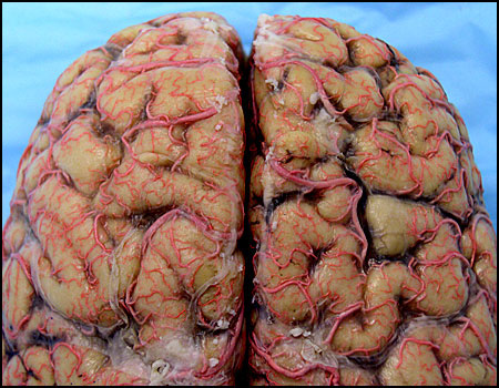 Human Brain Dissection Research services